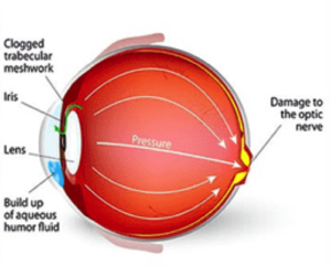 Glaucoma treatment in St.Croix