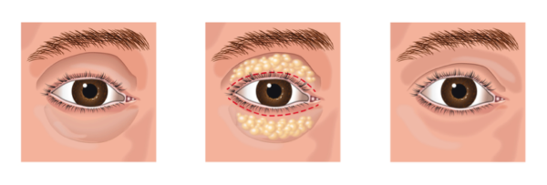 Oculoplastic Cosmetic Surgery