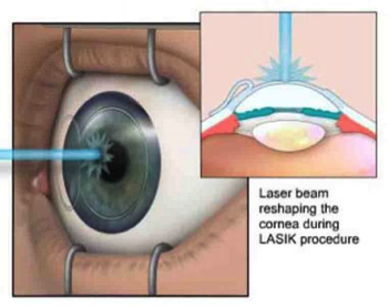 Refractive Surgery in Virgin Islands