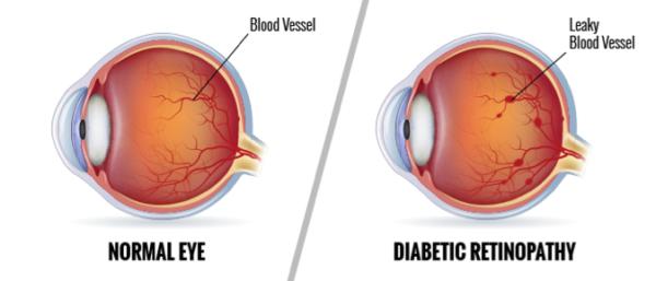 diabetic retinopathy treatment in Virgin Islands