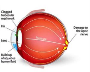 Glaucoma treatment in St.Croix