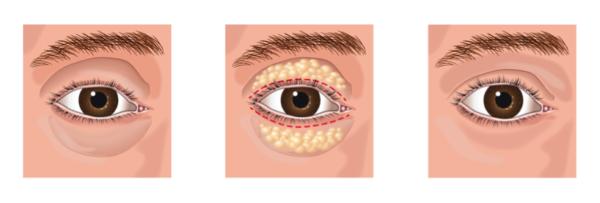 Oculoplastic Cosmetic Surgery