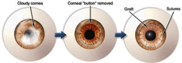 corneal disease treatment in Virgin Islands